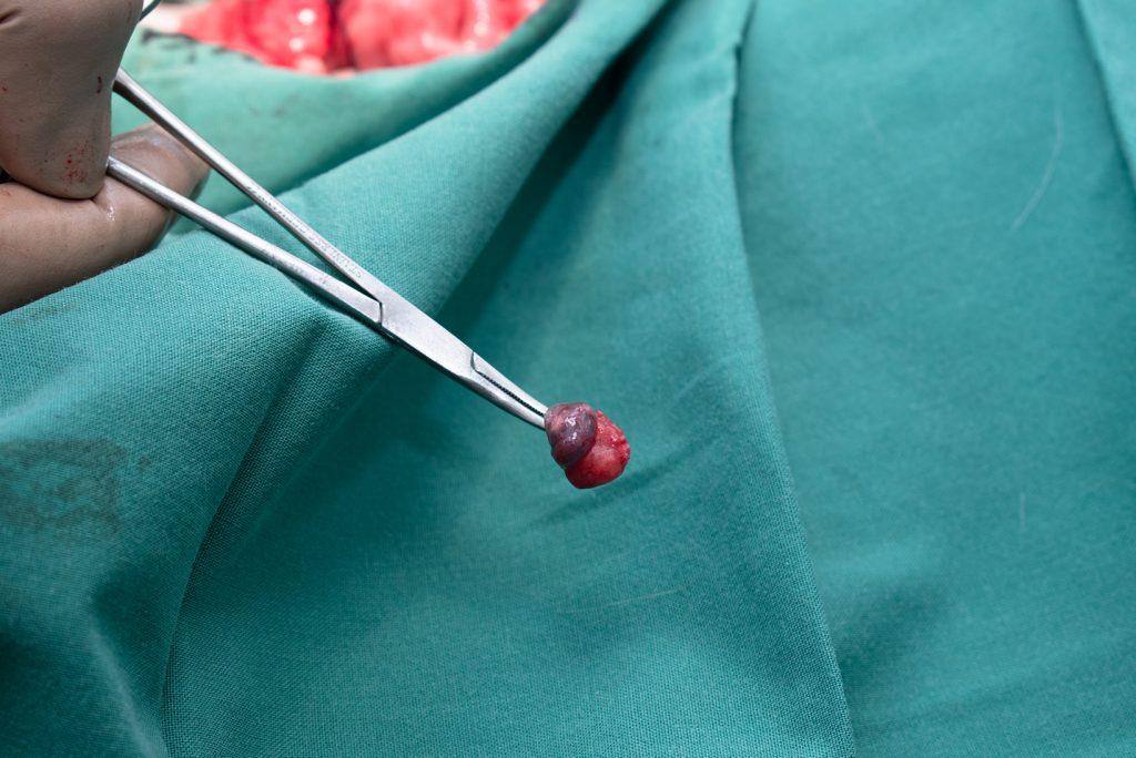 Castratie eierstok